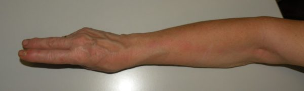 Hand and forearm lymphangitis